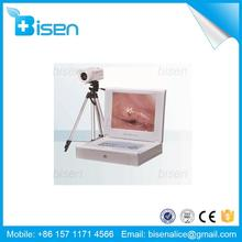 Video Camera High Quality Colposcope English Software