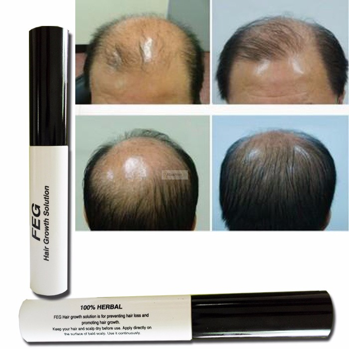 1pc Original FEG hair growth treatment prevent hair loss care product oil tonic for hair growth oil