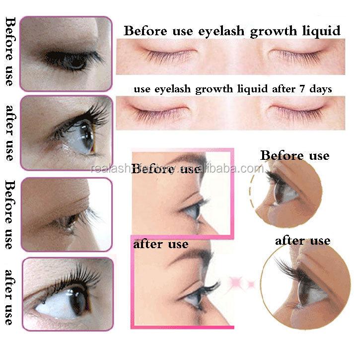 lash plus eyelash serum