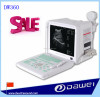 vet ultrasound & ultrasound machine cost&ultrasound scanner for sale DW360
