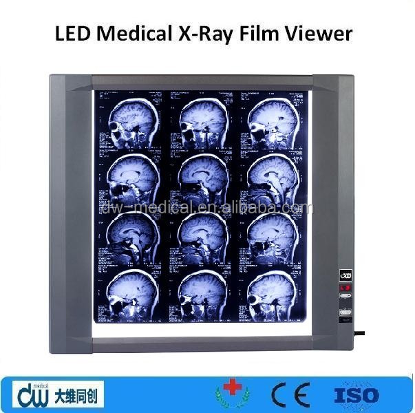 medical LED adjustable film viewer / x ray machine/ negatoscope