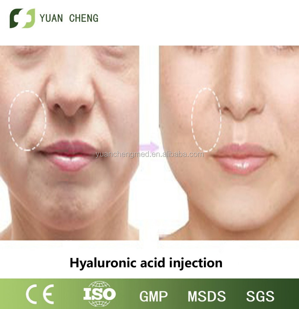 2016 derm 2ml Filler Injectable Hyaluronic Acid /buy inject dermal filler for deep line