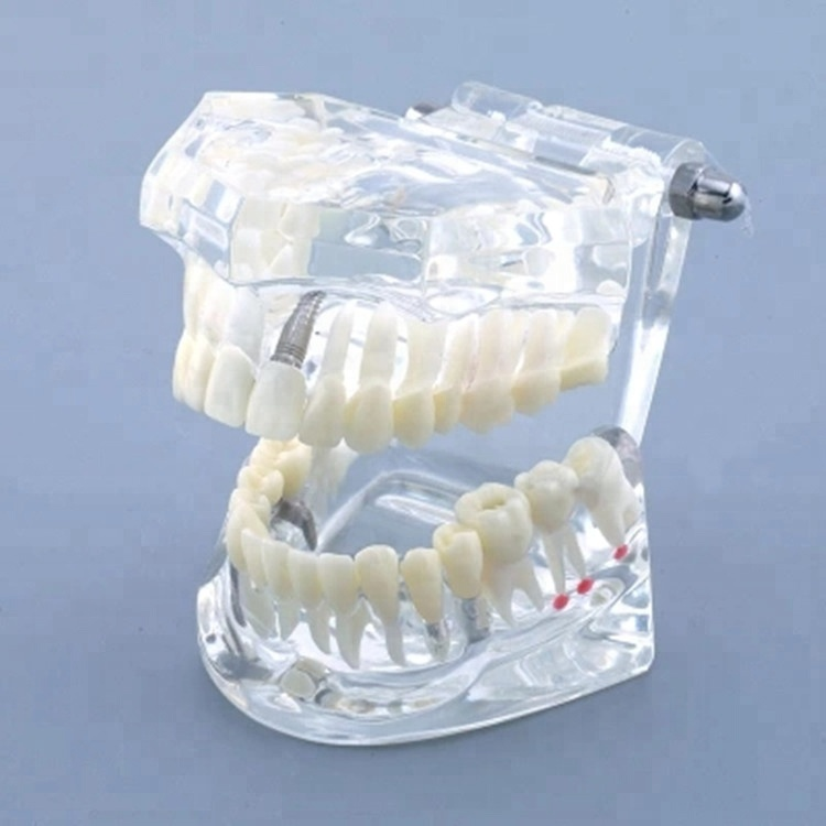 AiFan Dental 1pc Fast Shipping Transparent Teeth Study Dental <strong>Model</strong> With Restoration AF-2001