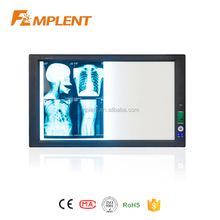 double section LED high brightness x-ray film viewer