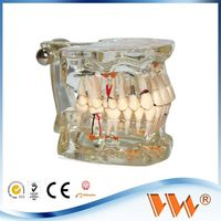 Dental implant disease teeth with restoration teeth and dental models for promotion