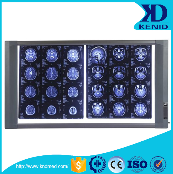 LCD High Luminance medical x-ray film light viewing box