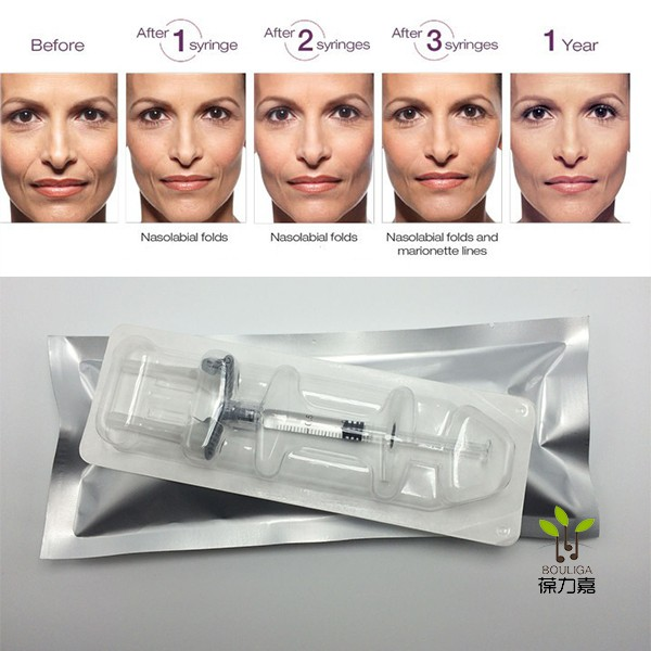 injectable hyaluronic acid filler injectable filler for face beauty