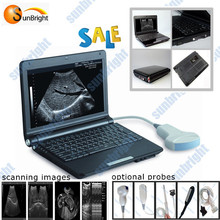 Medical machine,Ultrasound scanner,pc type