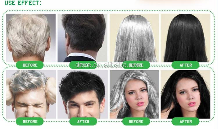 Stunning Coloring Shampoo For Grey Hair Images - Coloring 2018 ...