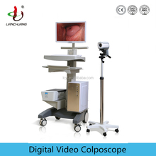 High Quality Digital Video Colposcope with HD Camera