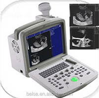 Veterinary Ultrasound Scanner for cow Pregnancy Test