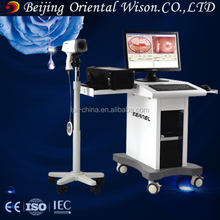 Gynecology examination Equipments colposcope digital vaginal