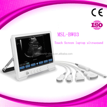 Digital laptop ultrasound scanner 15 inch LCD/Mobile ultrasound