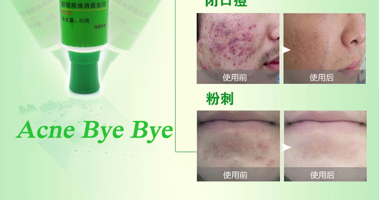 OEM Acne Removing and Anti Acne Cream