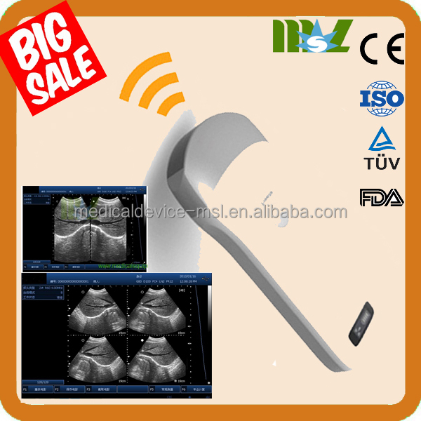 MSLPU31Q medical CE new arrival portable handheld ultrasound device/scanner