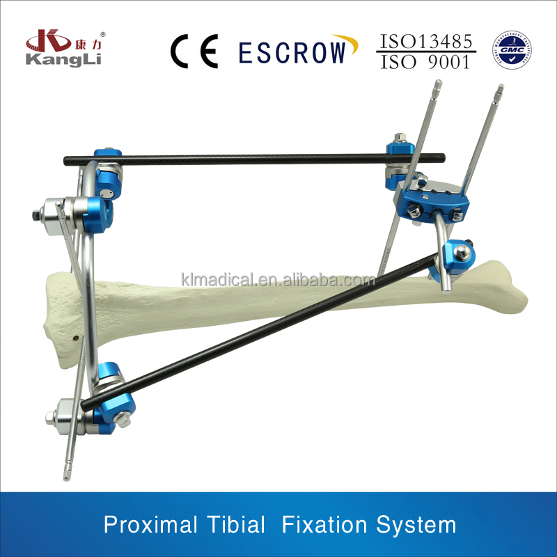 Orthopedic External Fixation: Proximal Tibial Joint Fixation System