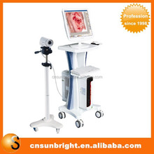 Top China Supplier Portable Electronic Colposcope Type camera colposcopy