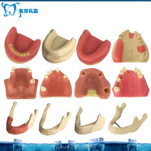 Dental practice of dental implant model dental model