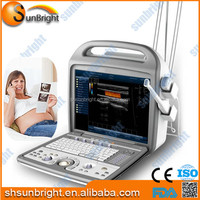 Examination Therapy Equipments Portable Cardiac Vascular OB/GYN Echo Color Doppler