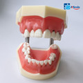 Dental Model/Teeth Medical Model/Periodontal Disease Study Model