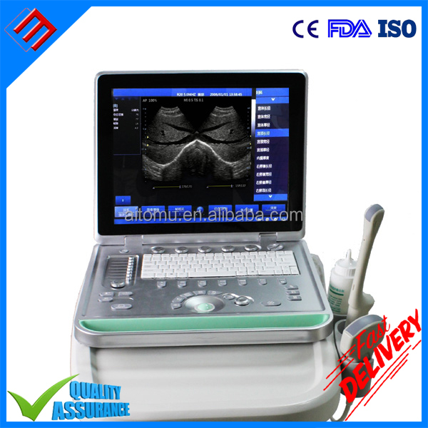 Digital Type SS-8 Laptop Ultrasound B Model scanner With Low Price
