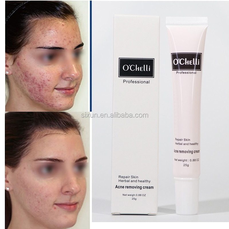 Herbal And Heathy Best Quality Oil Control Remove Pimple Best Anti-Acne Cream