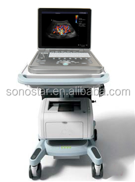 Economic hot selling tcd transcranial color doppler