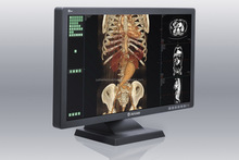 31(JUSHA-C42)4MP LED Medical Monitor,digital x ray machine veterinary price