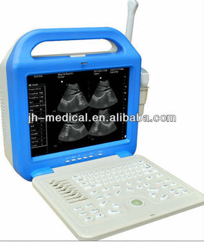 Digital ultrasound scanner for pregnancy JH-6200B