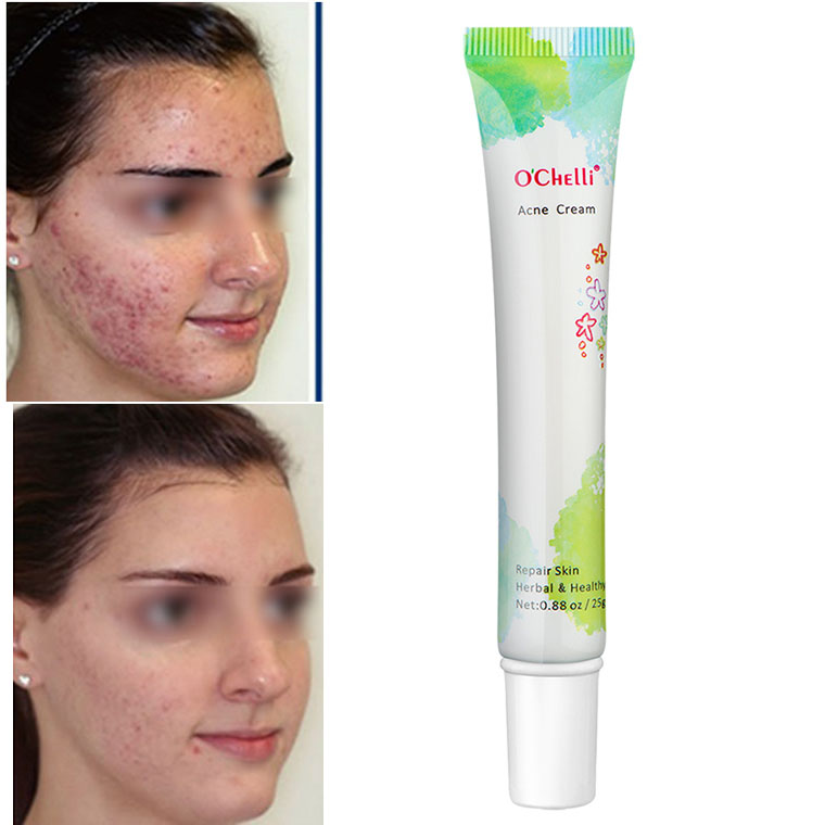 Hot Selling Best Anti Acne Pimples Treatment Remove <strong>Cream</strong> O'Chelli Acne Cemoving <strong>Cream</strong>