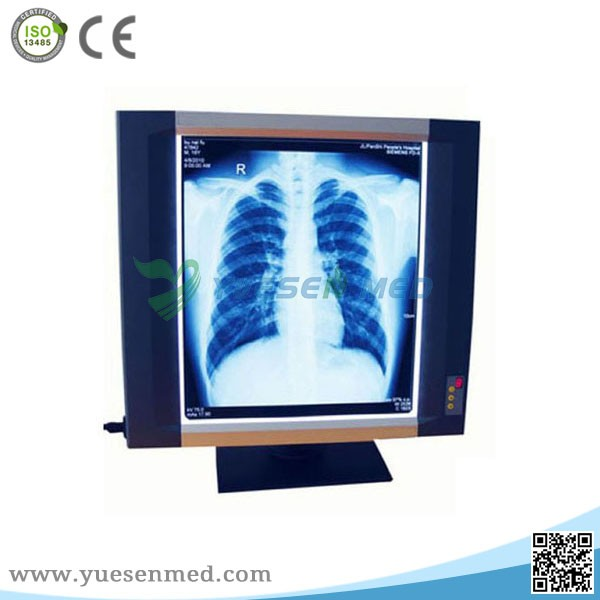 YSX1704 hot sale led medical negatoscope film viewer