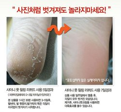 2012 hot sale Foot Exfoliation Peeling Easy Mask