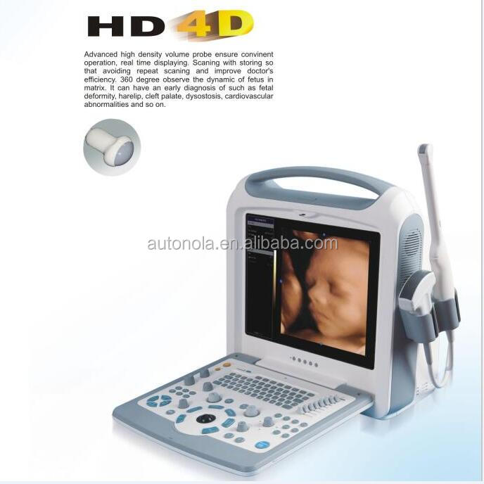 Professional 4D color doppler ultrasound machine, echographe 4D with portable