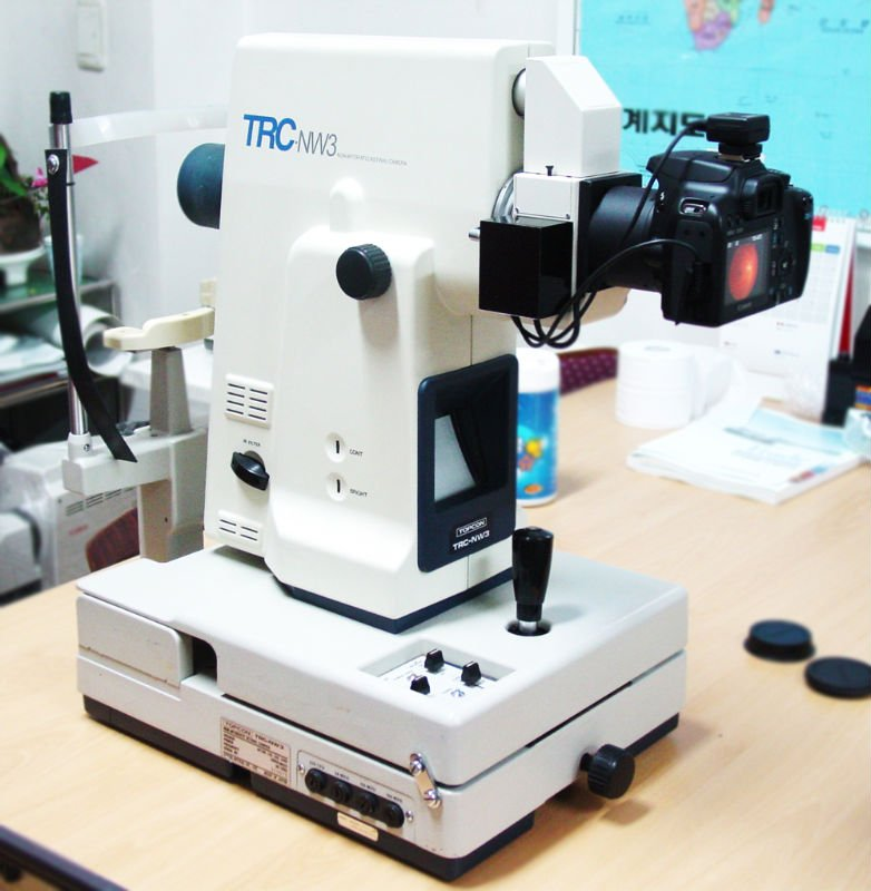 Topcon NW3 Digital upgrade Fundus camera