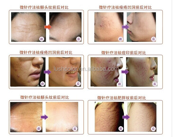 Wholesale Price For Cosmetics Led Microneedling Roller