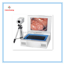 Best-selling Gynecological Digital Electronic Colposcope/Colposcopy