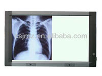 Medical wall mounted x ray film viewer