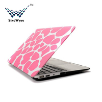 Colorful PC Laptop Cover for Macbook