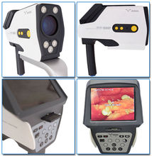 electronic colposcope software/touch screen ultrasonic machine