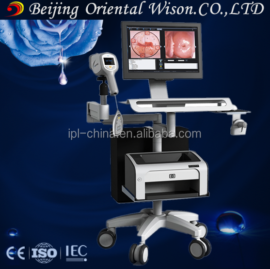 Optical Electronic Digital Colposcopy