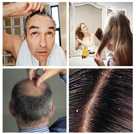 Organic natural anti-hair loss effective hair growth nourishing liquid spray lost hair treatment