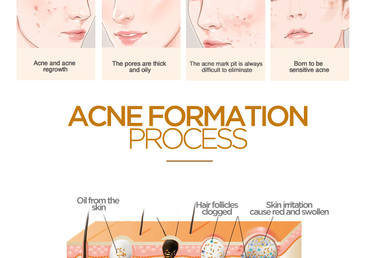led light for acne