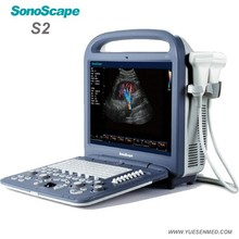 Sonoscape full digital 3D 4D color doppler portable echocardiography machine