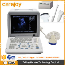 CE&ISO portable Ultrasound Machine cardiac USG with 3.5Mhz convex probe 7.5MHz linear Sony printer for sale
