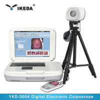 Cheap Wholesale digital & optical video colposcope for vagina