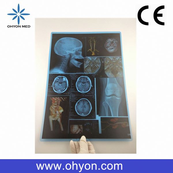 CE/ISO Hot sale 8*10 Inch Medical xxx rated films film for hospital high quality