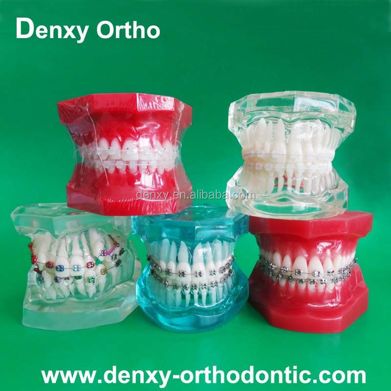 Orthodontic Products High Quality Plastic Dental Teeth Models /Study model