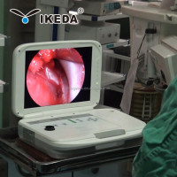 Fiber optic endoscopy/endoscope diagnostic equipment