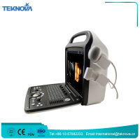 Teknova Best 2D Portable Ultrasound Echo Machine for Pregnancy Price