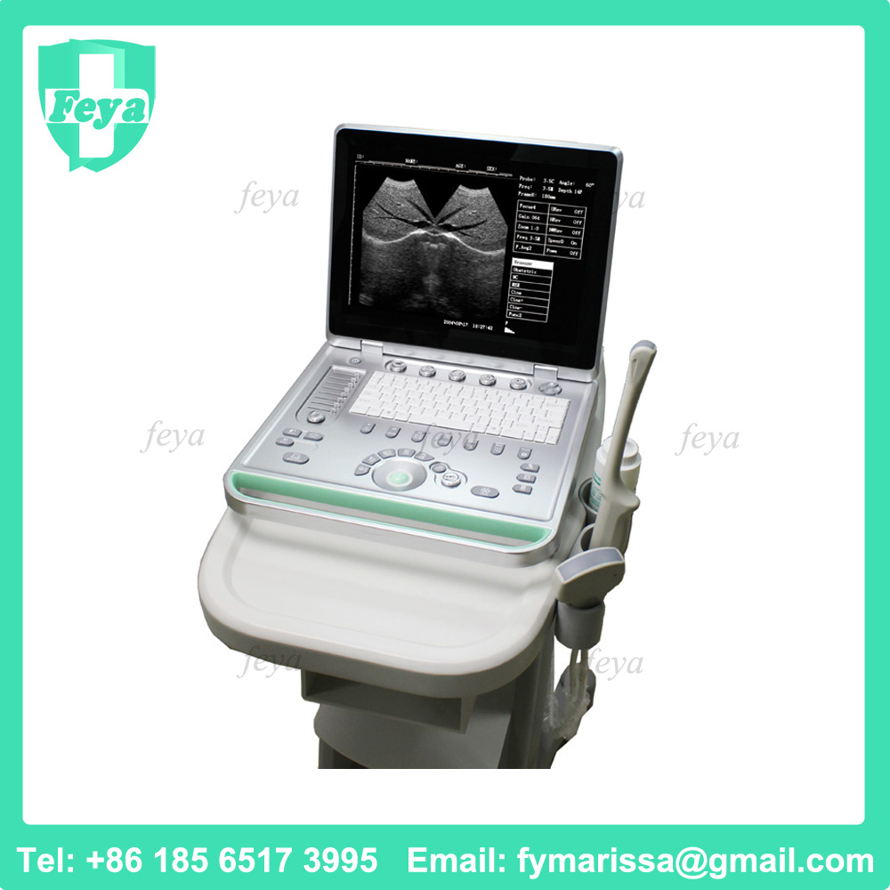 FY-SS-9 3d Portable Ultrasound Scan Machine Price